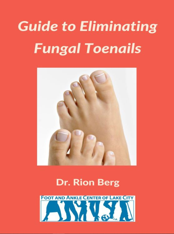 Guide To Eliminating Fungal Toenails
