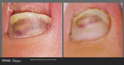 Fungal Toenail Treatment Before and After Photo